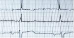 Che cos'è la coerenza cardiaca?