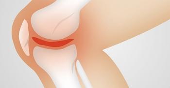 Risolvere l'artrosi con metodi naturali