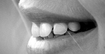 La stretta relazione fra denti e salute globale dell'individuo